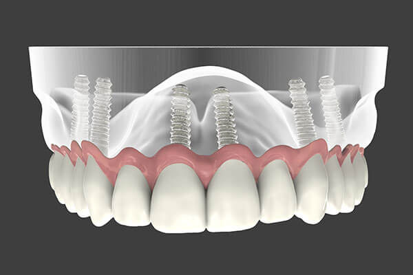 Dental Implant supported denture graphic