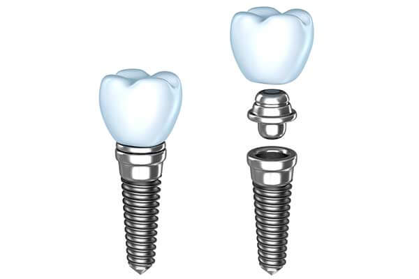 Single Dental Implants in Germantown