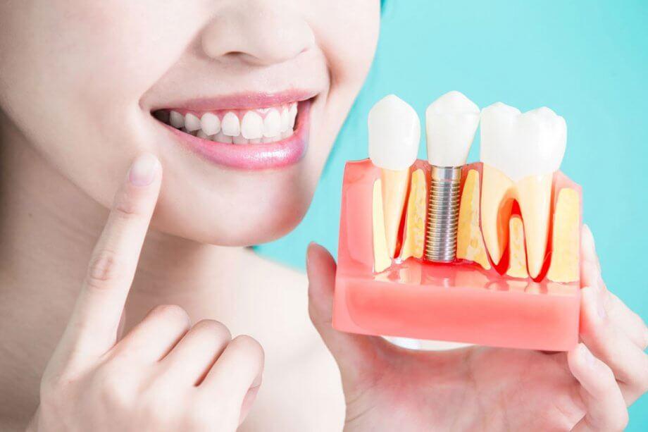 4 Myths About Dental Implants