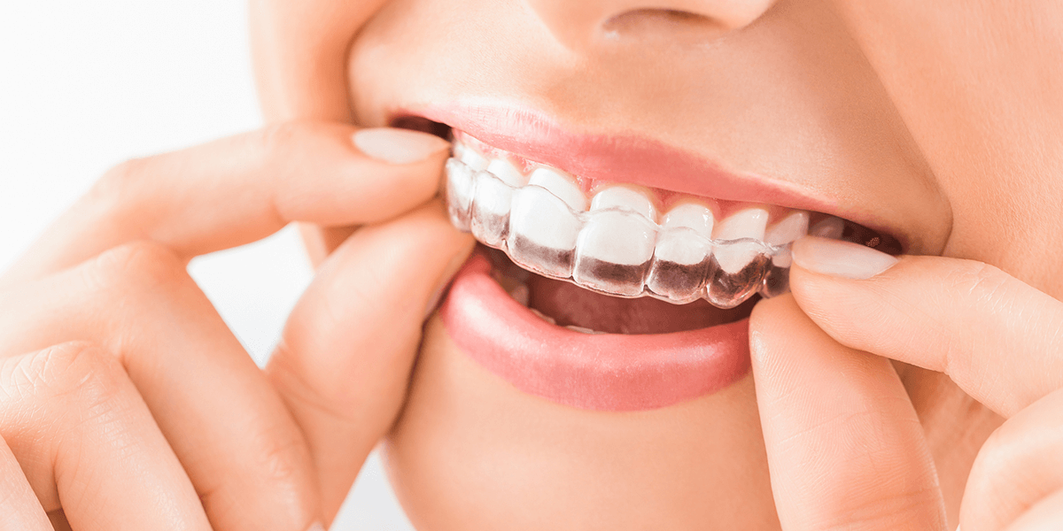 Germantown Invisalign Provider
