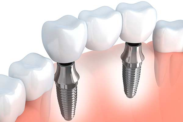 Dental Implant Supported Bridges in Germantown