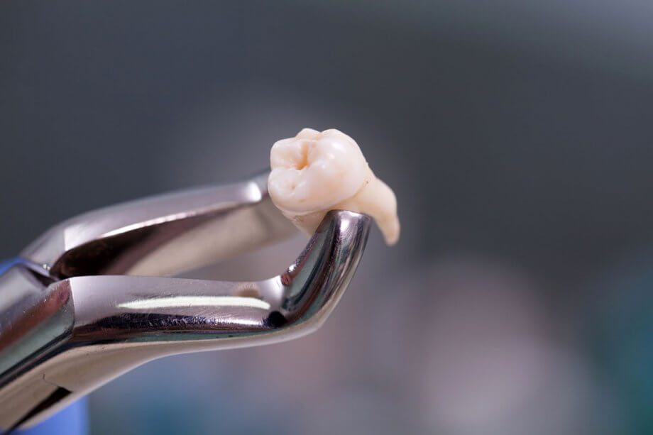What to Expect After Wisdom Tooth Extraction